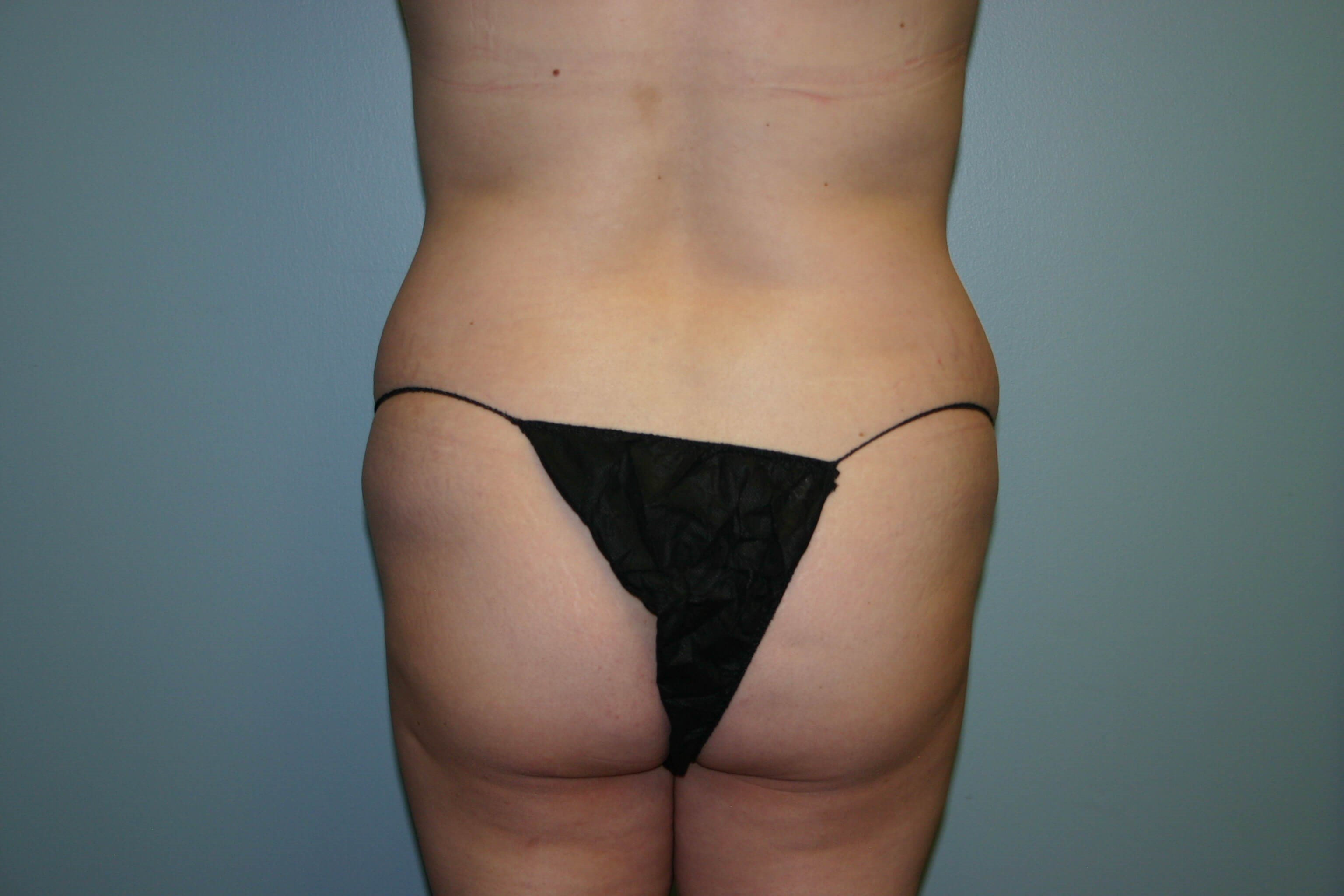 4 Months Post-op Butt Aug Before