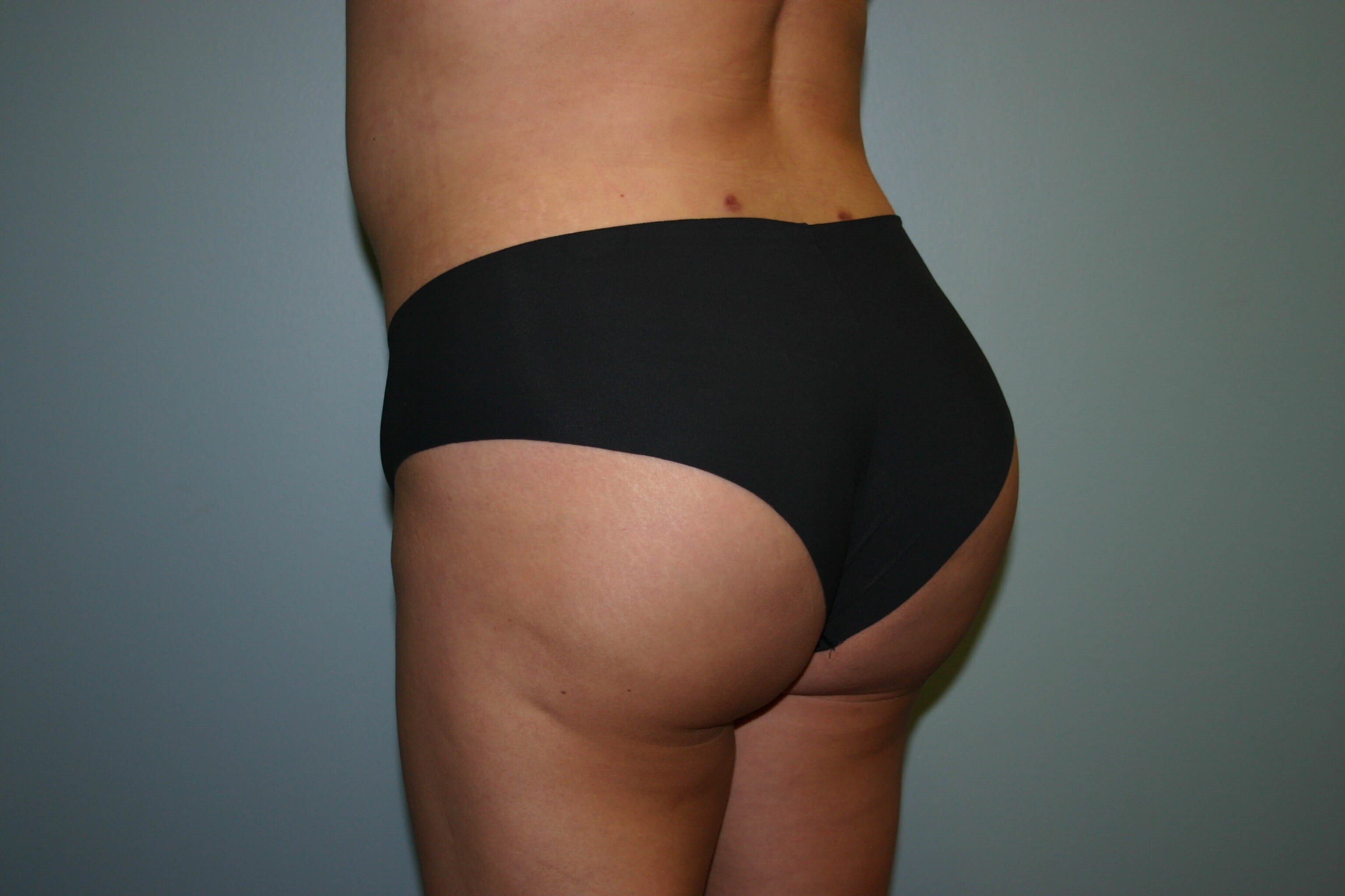 4 Months Post-op Butt Aug After
