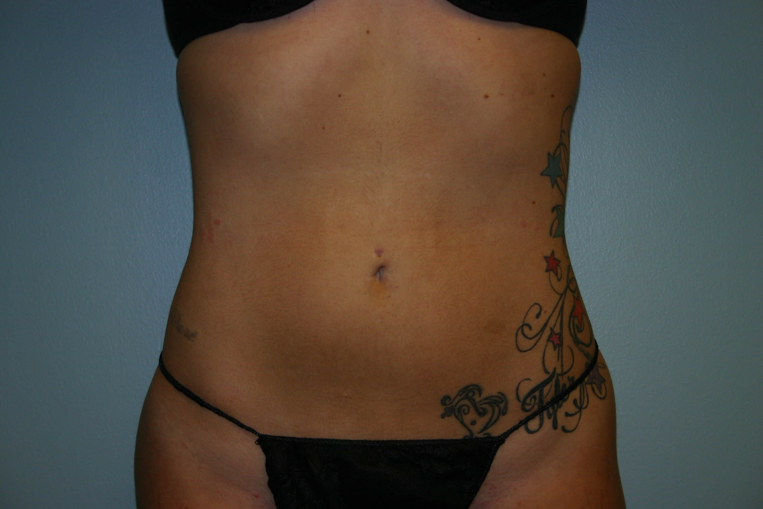 2 Months Post-op Liposuction After