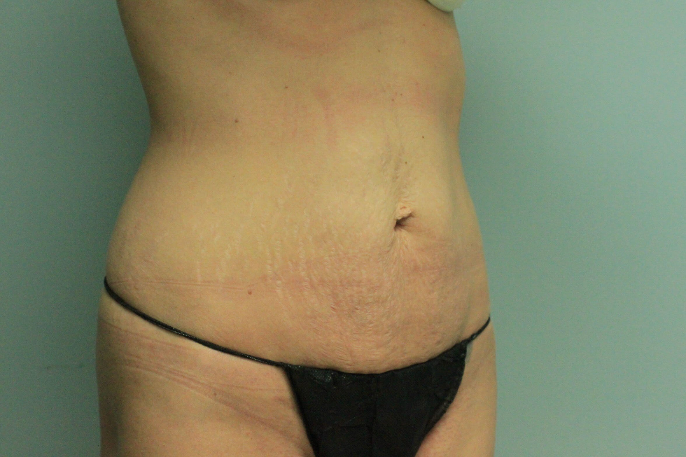 Oblique View Before