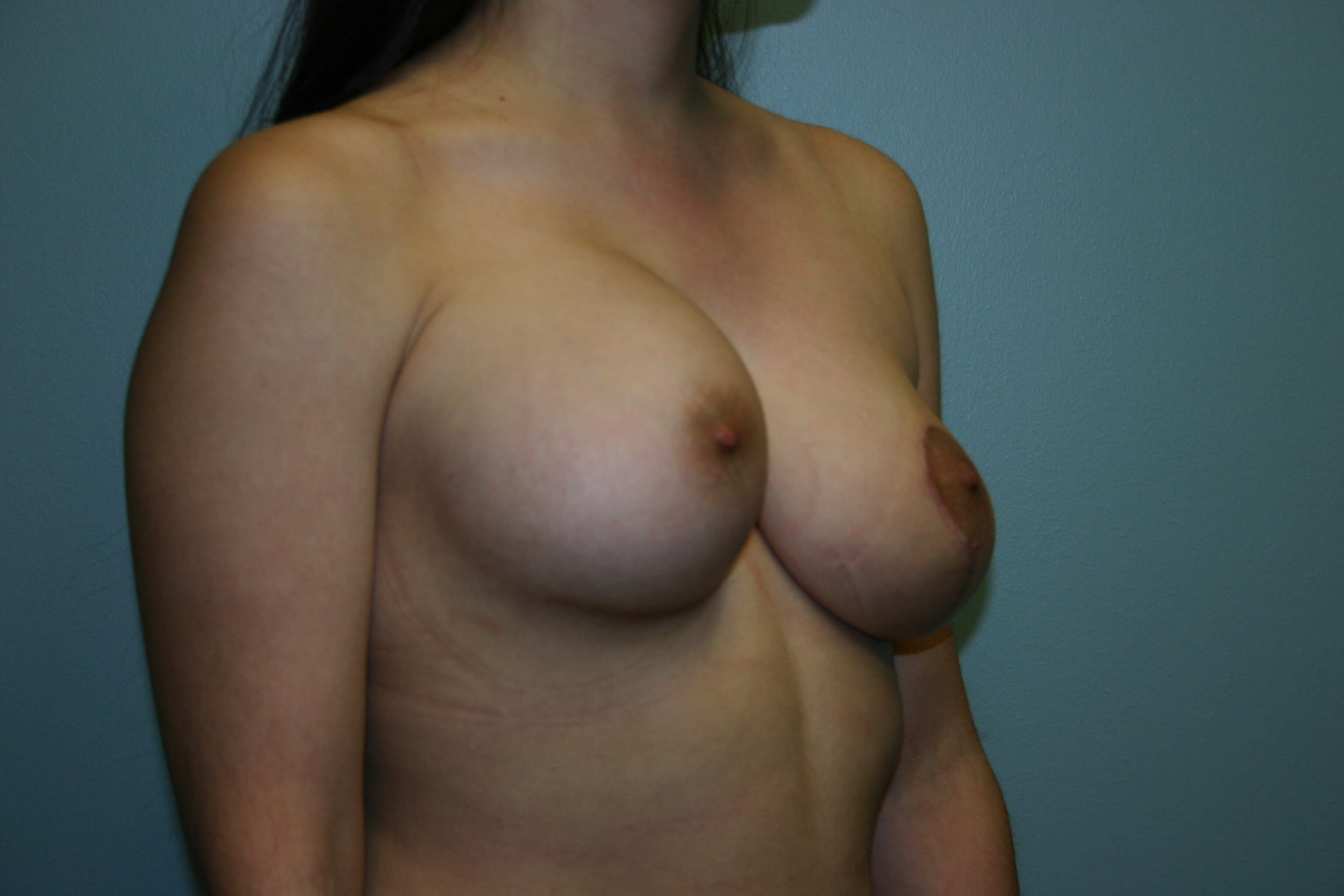 Oblique View After - 6 Months