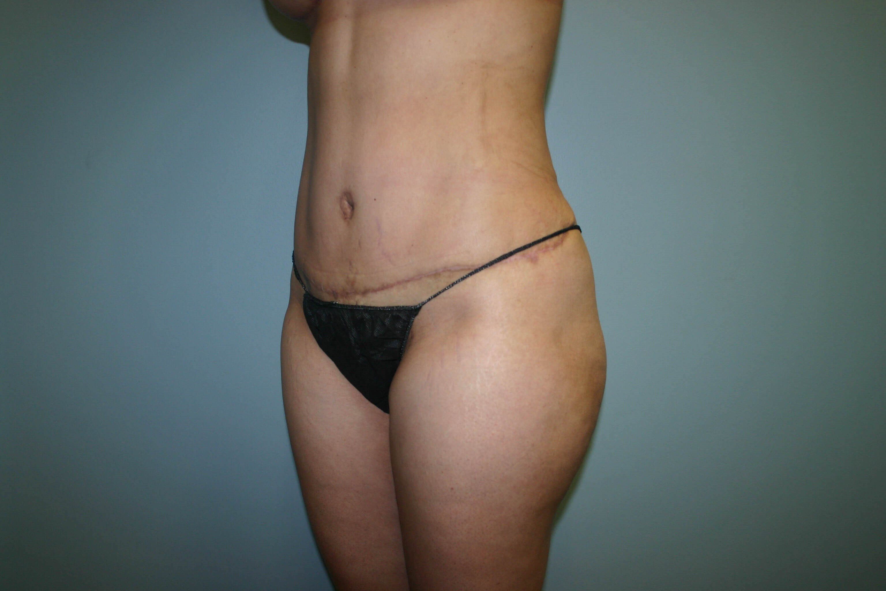 Oblique View After - 3 Months