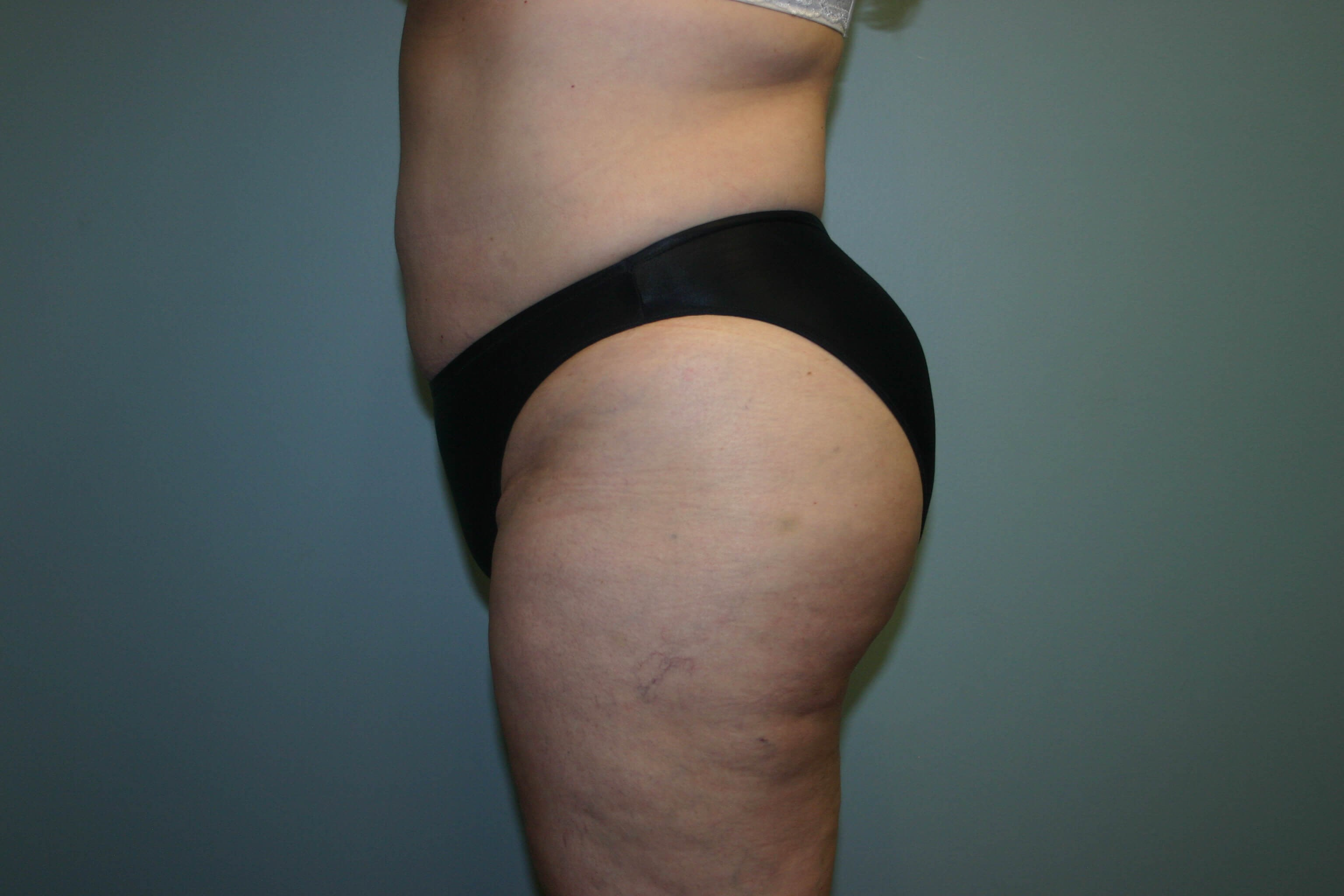 6 Months Buttock Augmentation After