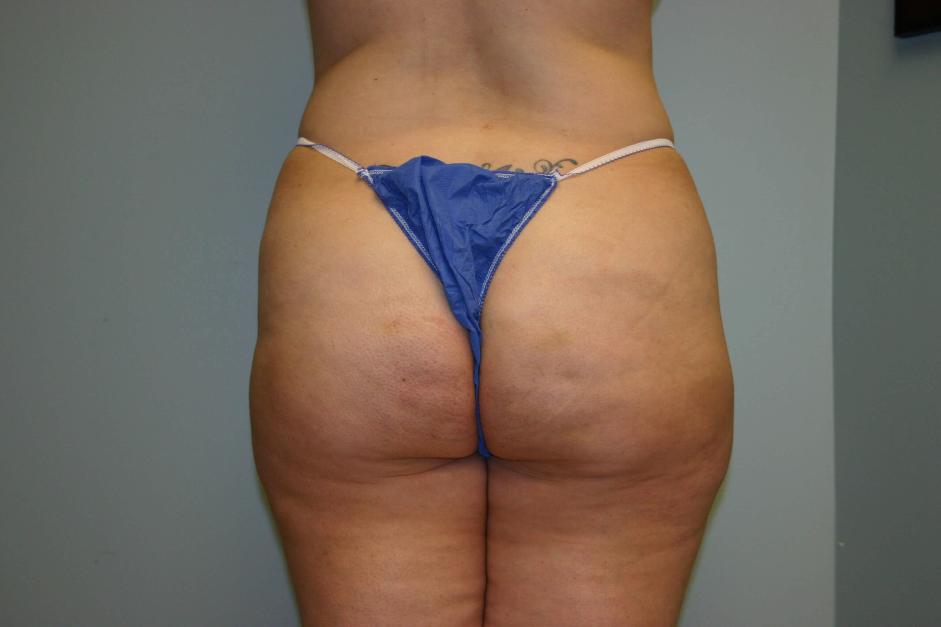 6 Months Buttock Augmentation Before