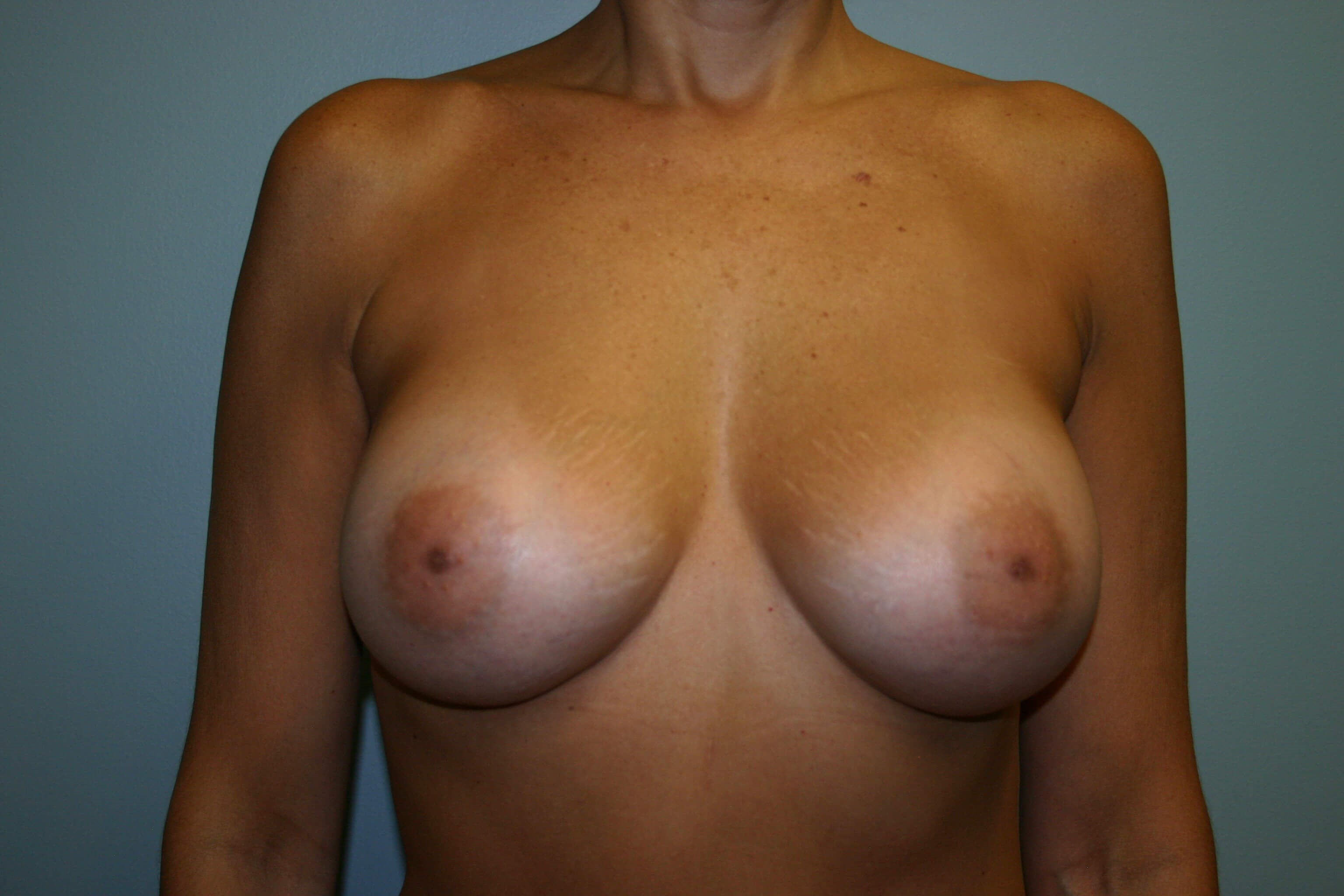 Breasts - Front View After