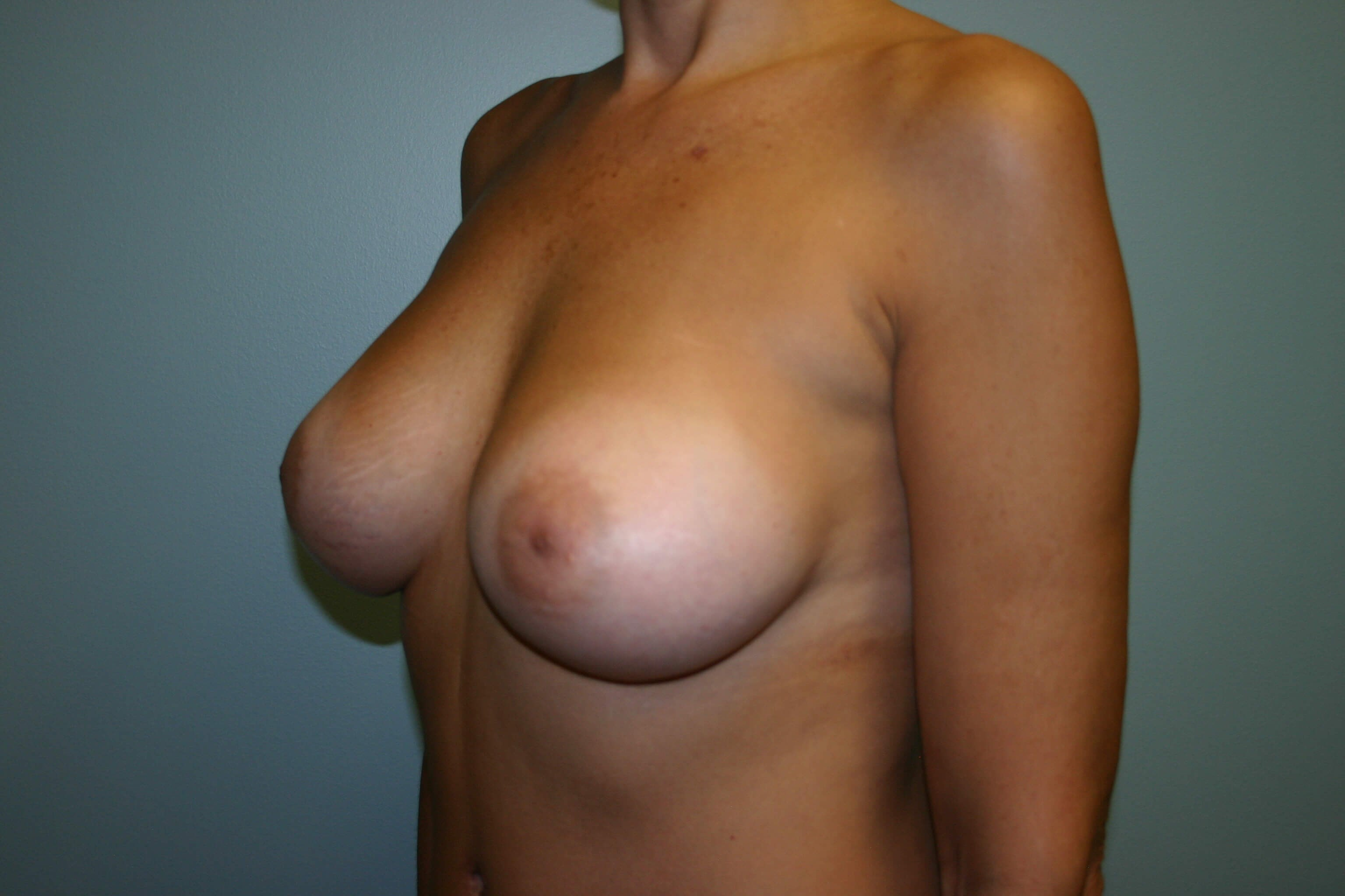 Breasts - Side View After