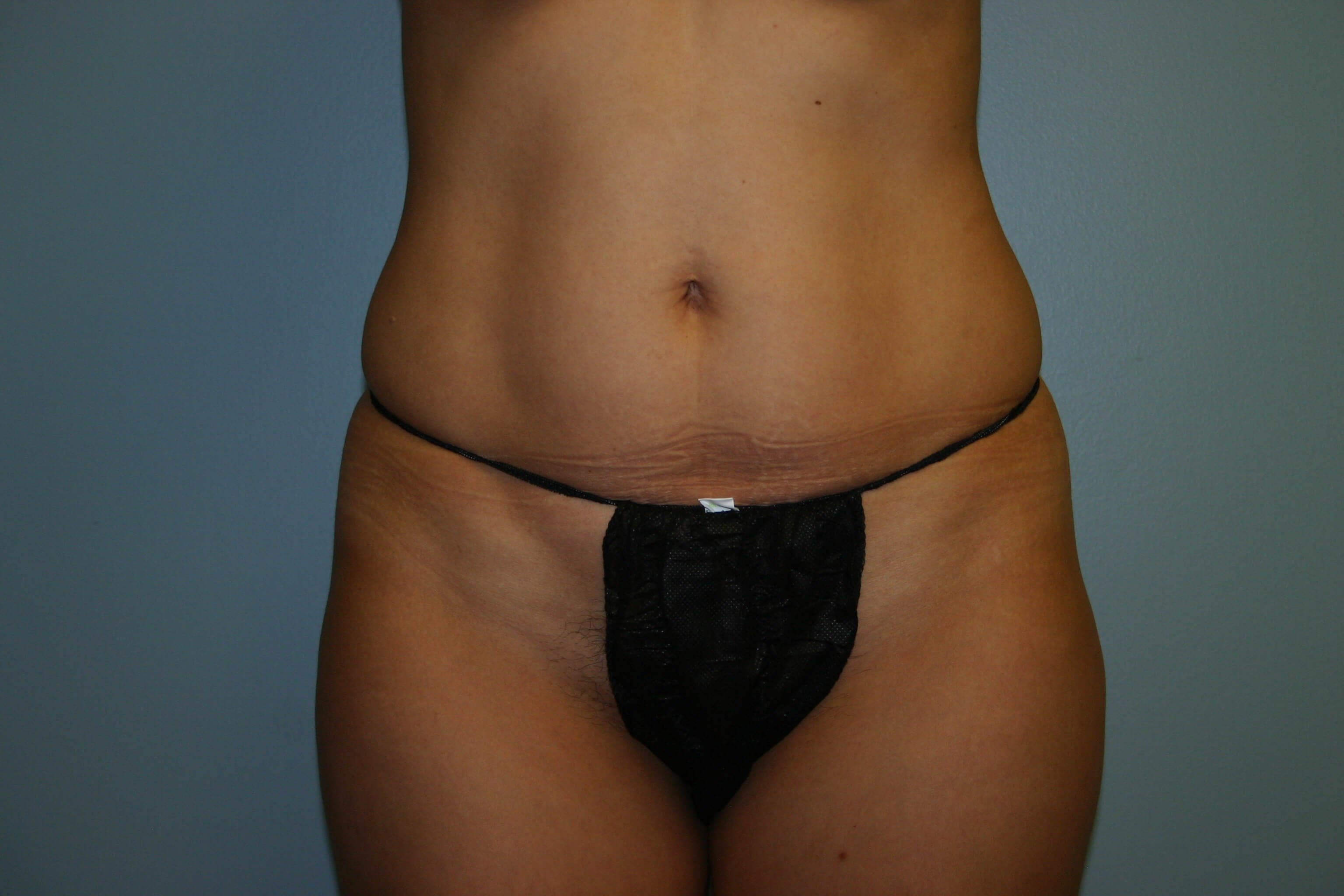 View 1 Before