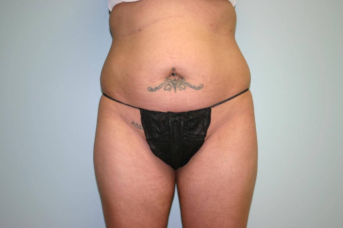 View 2 Before