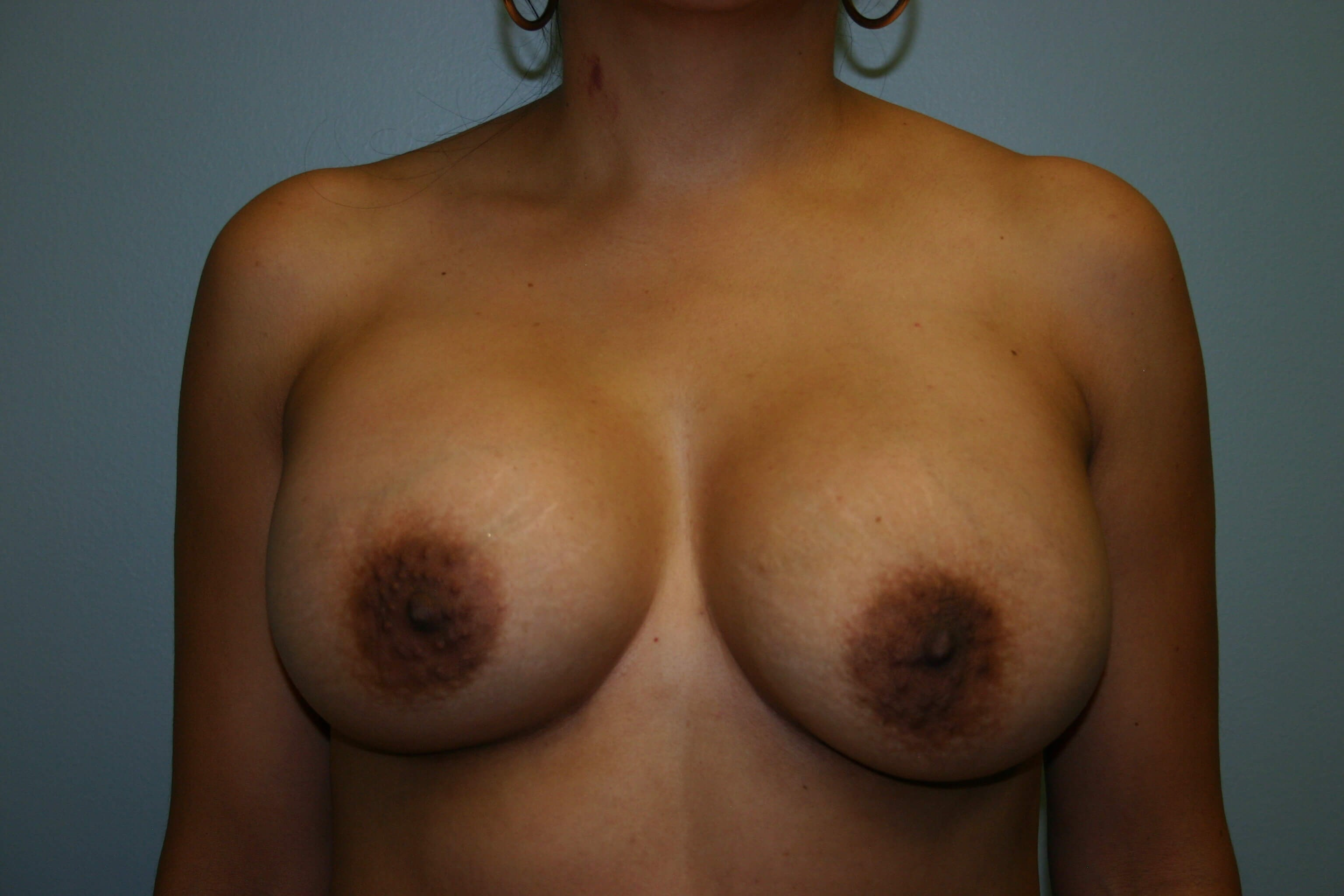 6 Months Post-Op Breast Aug After