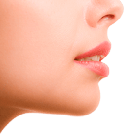 LIP LIFT Image
