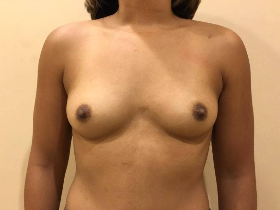 Breast Augmentaion Before