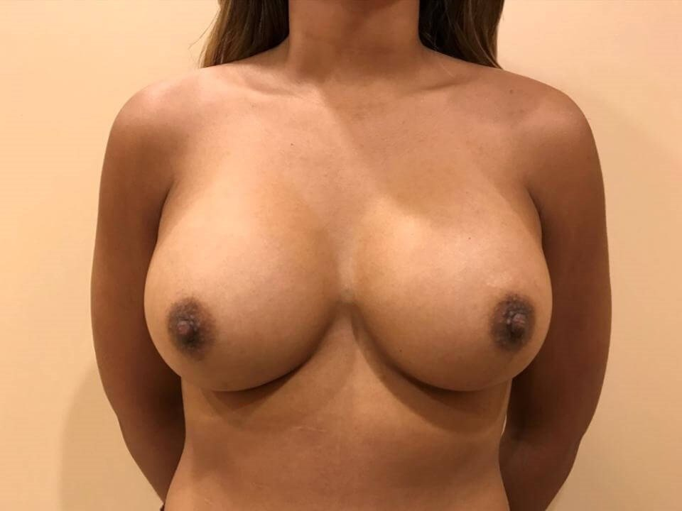 Breast Augmentaion After