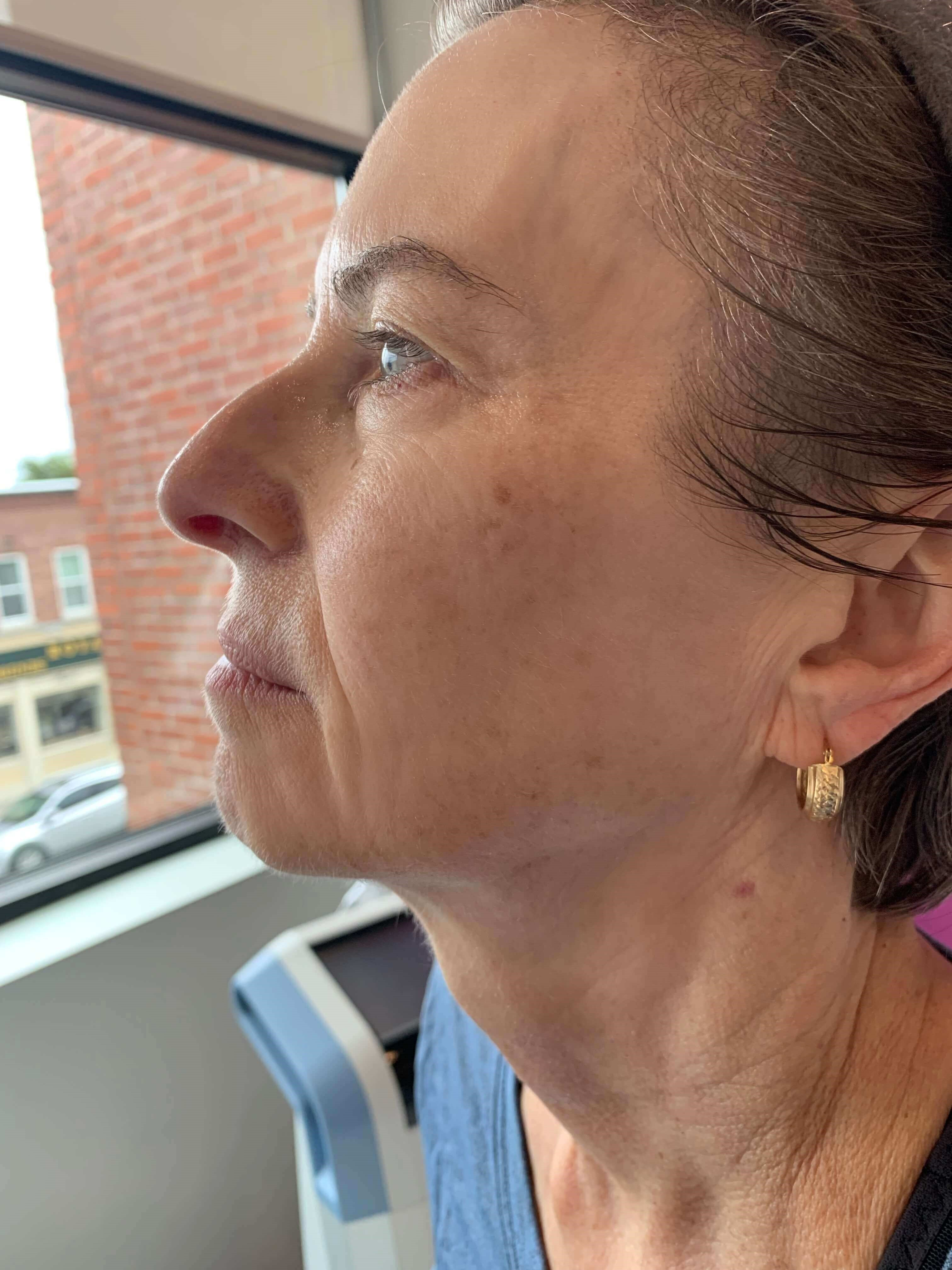 Skin tightening Andover After