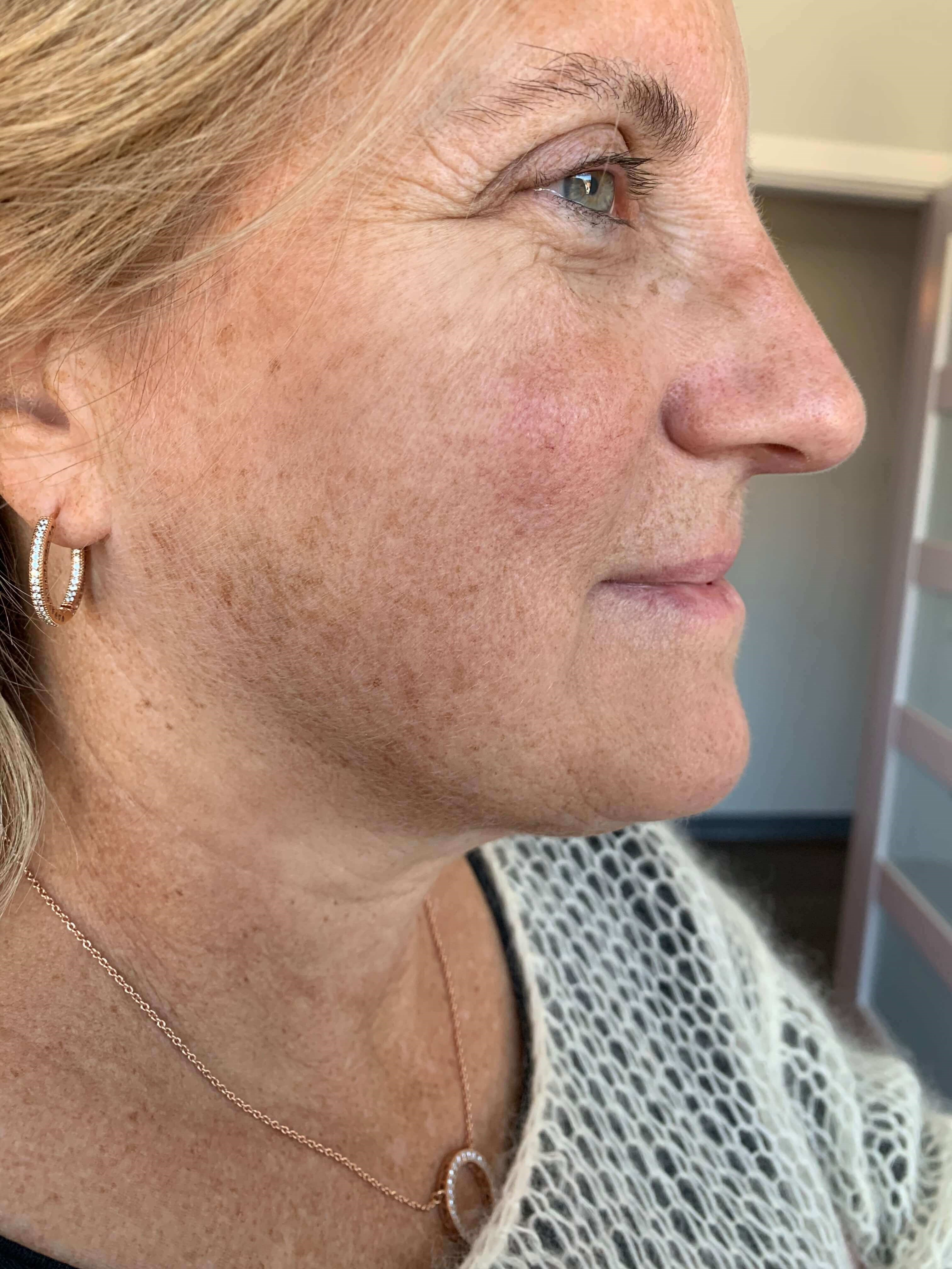 Non surgical neck lift After