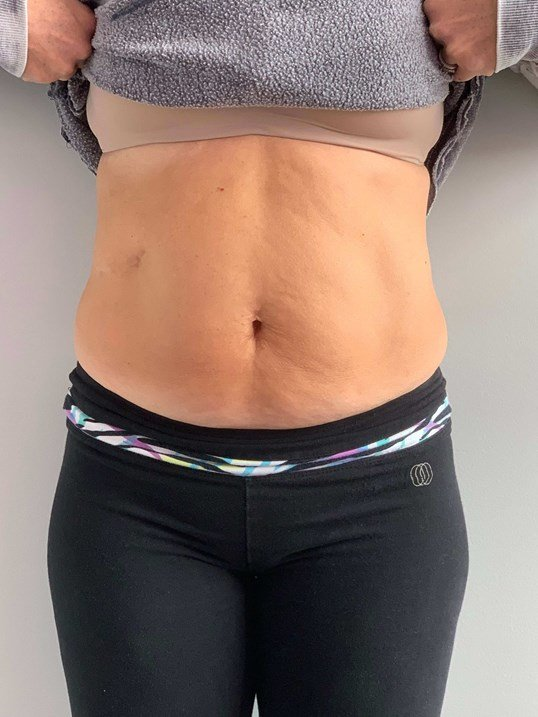 Emsculpt Abdomen Andover MA After