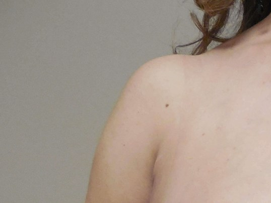 SIDE VIEW Before