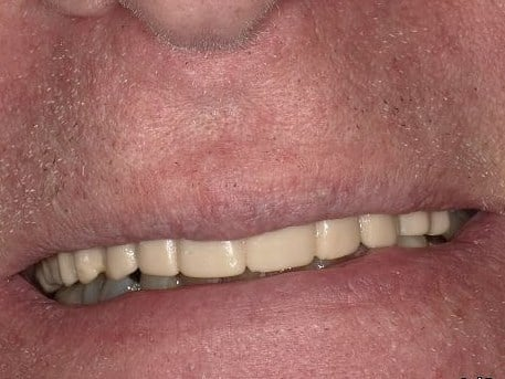 Implants Restore Smile Before