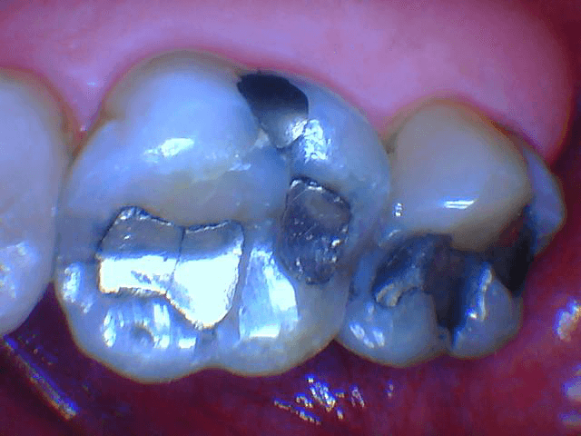 Cracked silver fillings Before