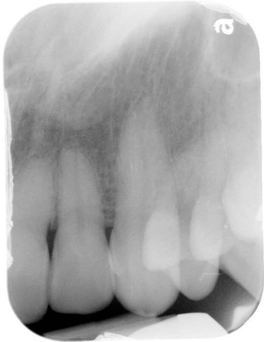 Root Canal Process Before
