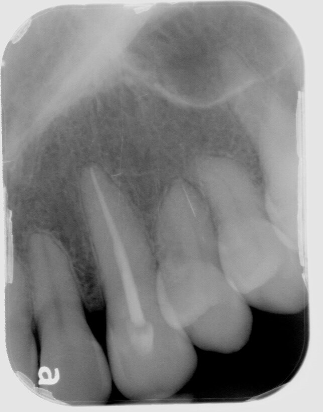 Root Canal Process After
