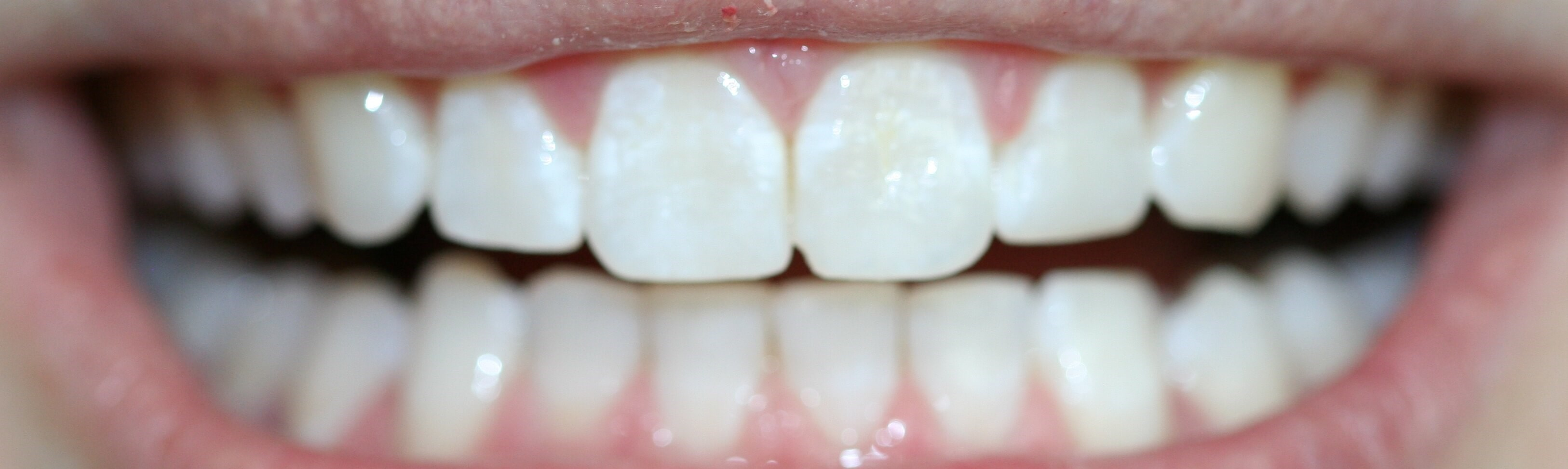 Invisalign and bonding After