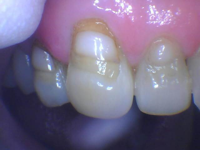 cavity removed and replaced Before