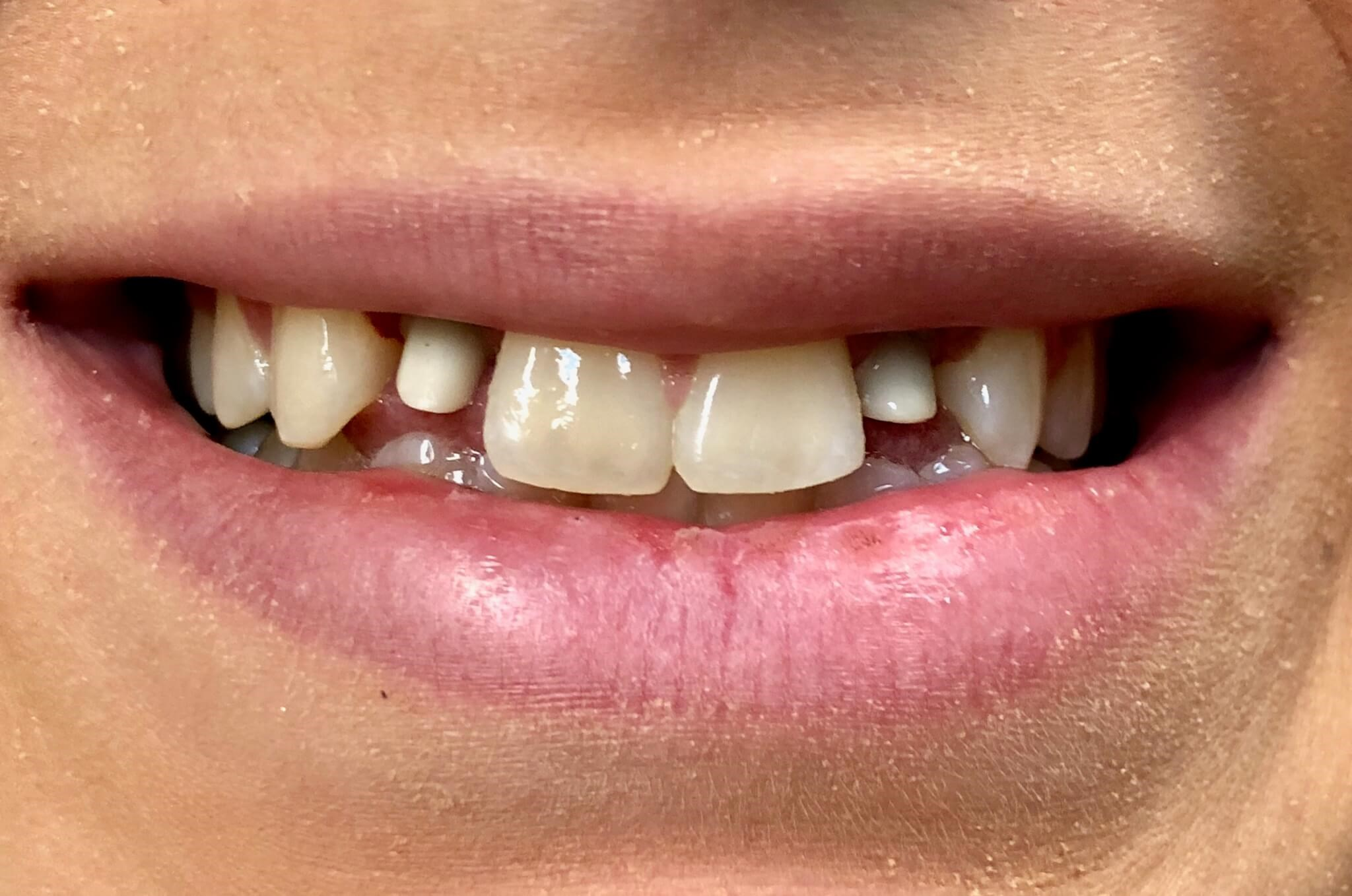 Implant crowns Before