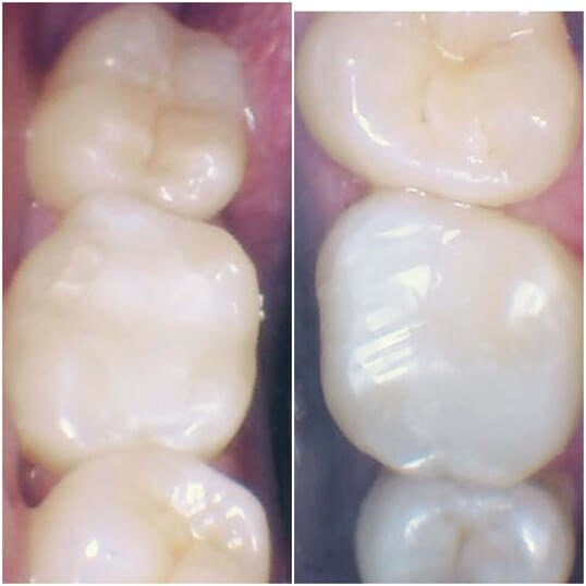 Metal fillings replaced After