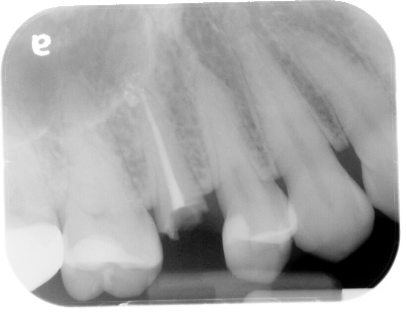 Immediate Implant Fracture of tooth