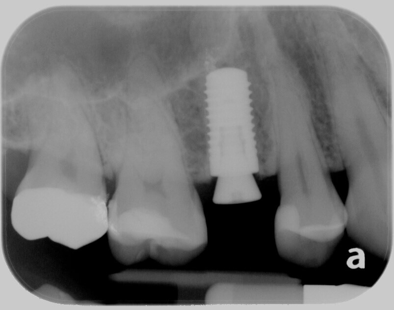 Immediate Implant Implant placed