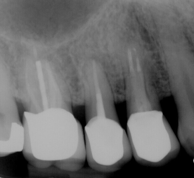 Fracture to Implant and Crown Before