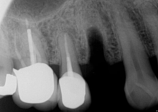 Fracture to Implant and Crown After Extraction