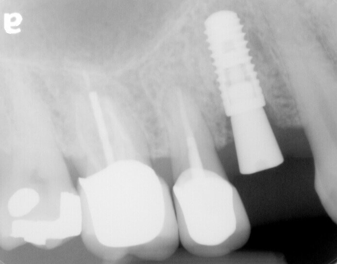 Fracture to Implant and Crown After Implant