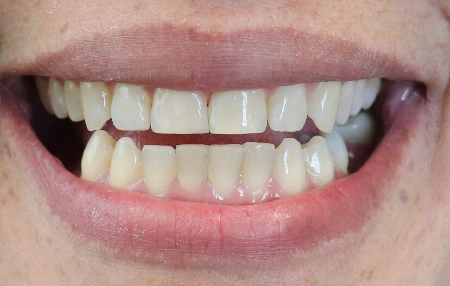 Chipped and Worn Front Teeth After