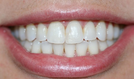 Invisalign Correction After