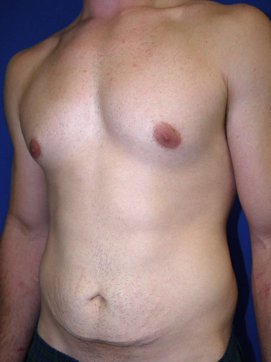 Left Oblique View Before