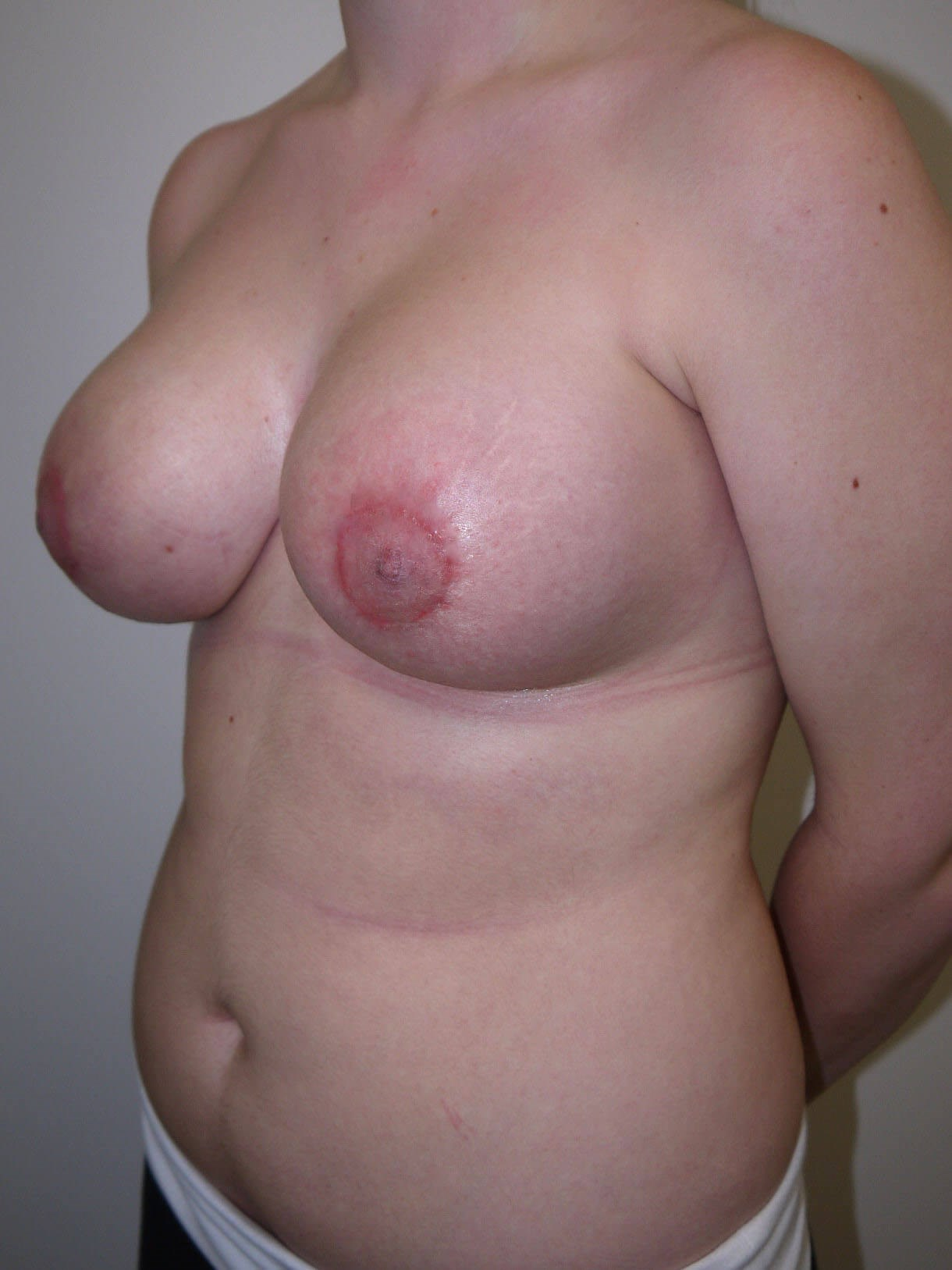 Scottsdale, AZ breast implant After