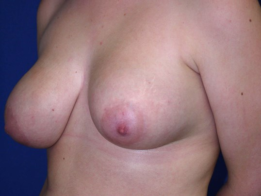 Scottsdale, AZ breast implant Before