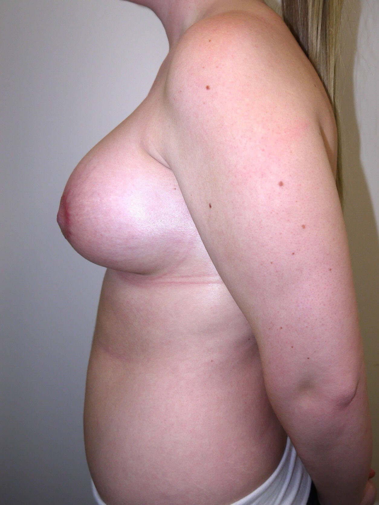 Scottsdale, AZ breast revision After