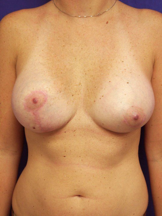 Scottsdale AZ breast recon After