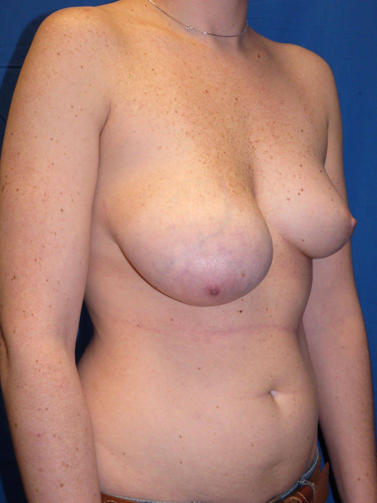 Scottsdale AZ breast lift Before