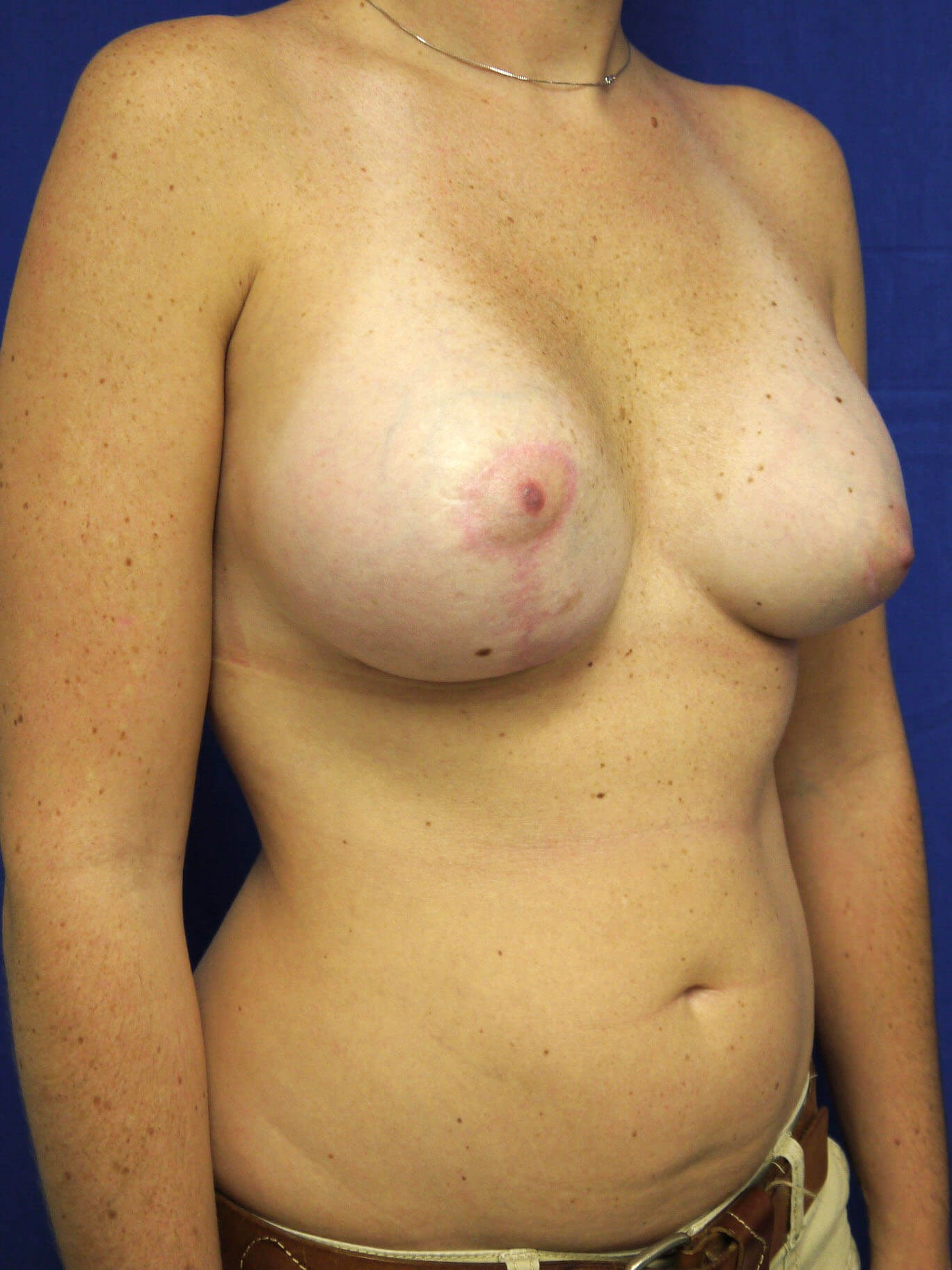 Scottsdale AZ breast lift After