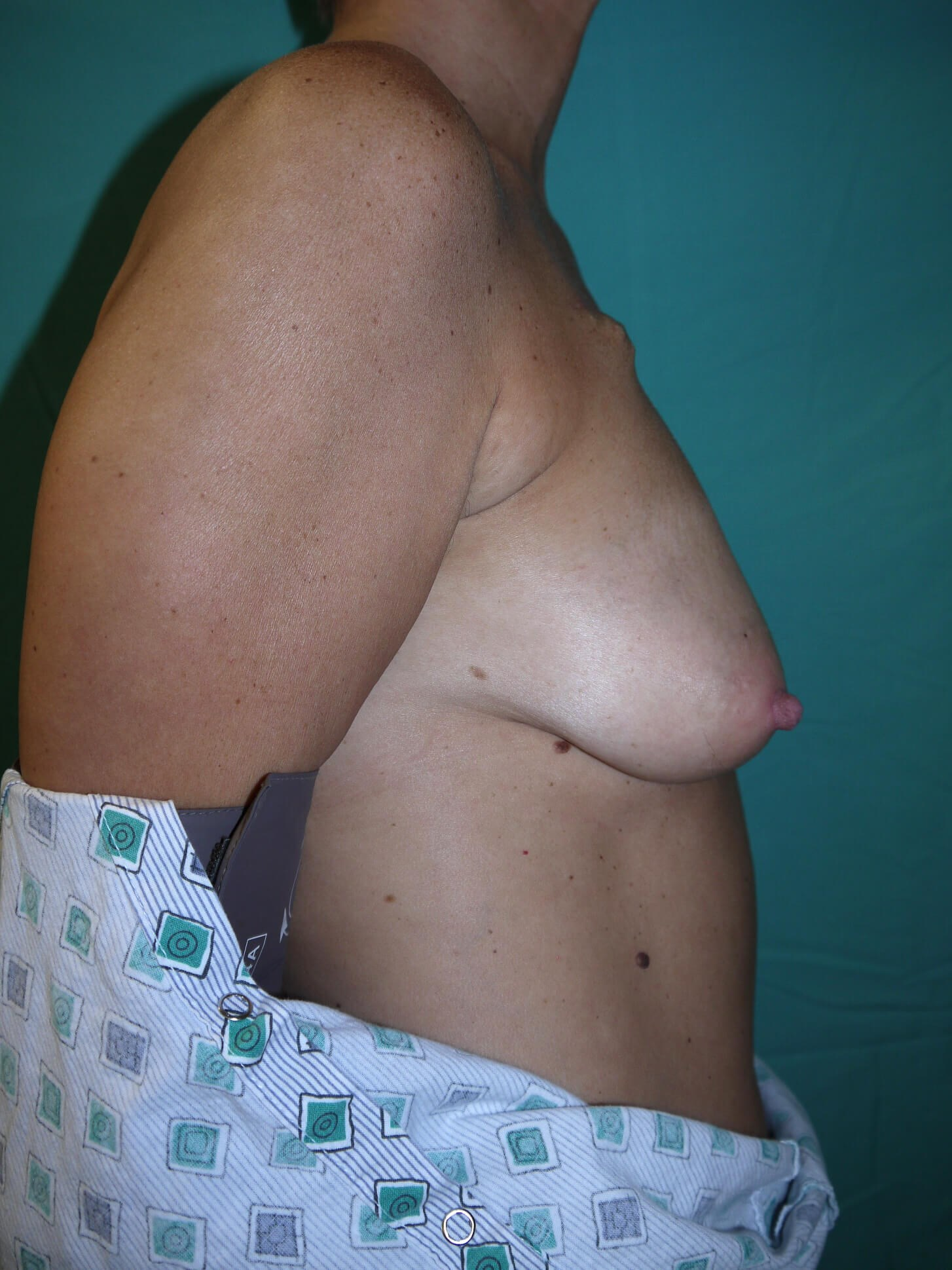 Scottsdale AZ breast recon Before