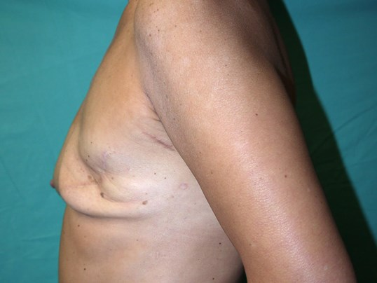 Mastectomy breast recons in AZ Before