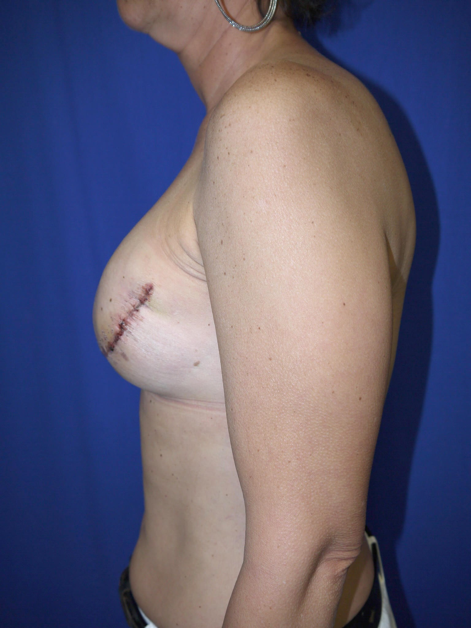 Mastectomy breast recons in AZ After