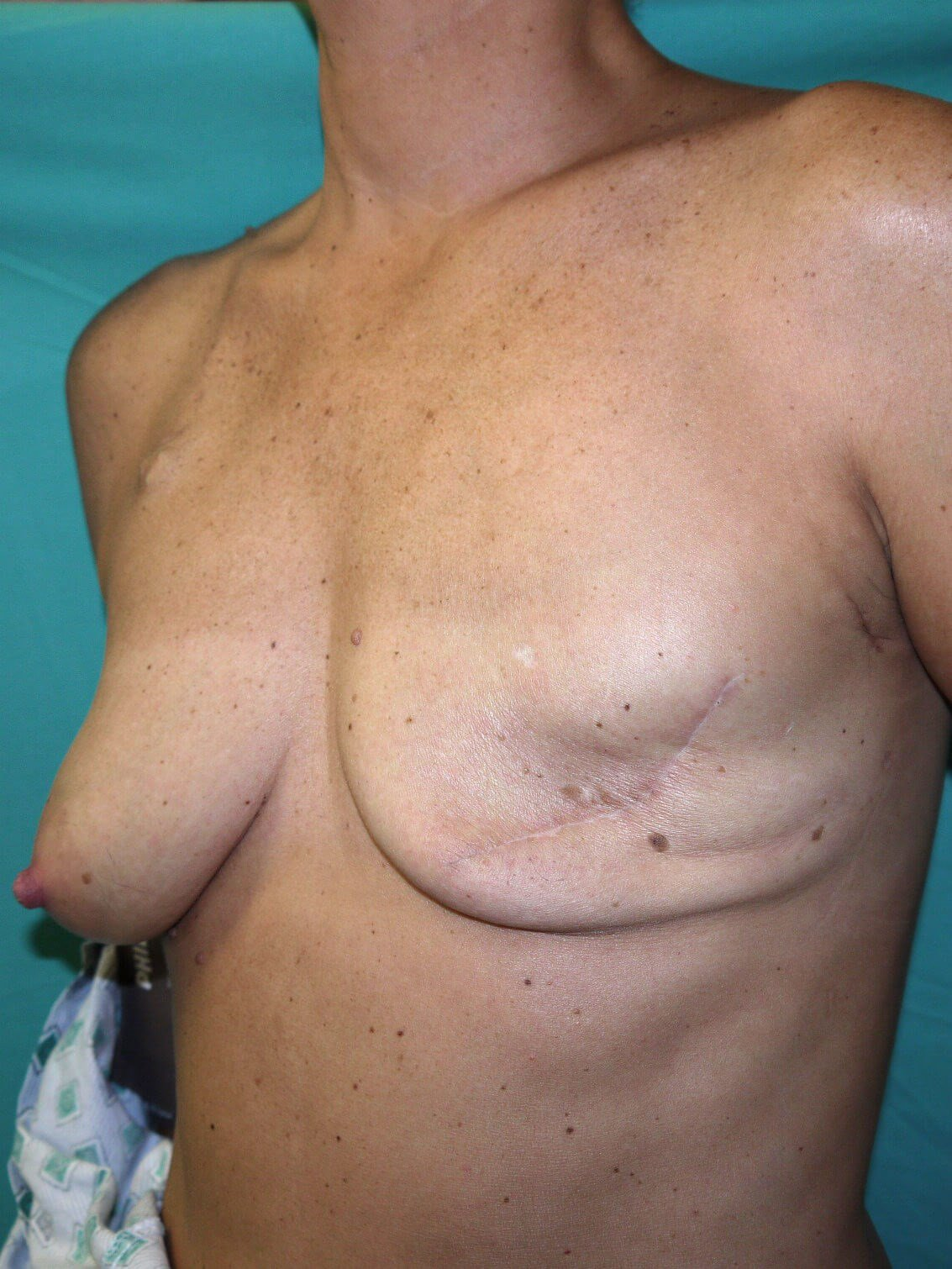 Scottsdale breast recon Before