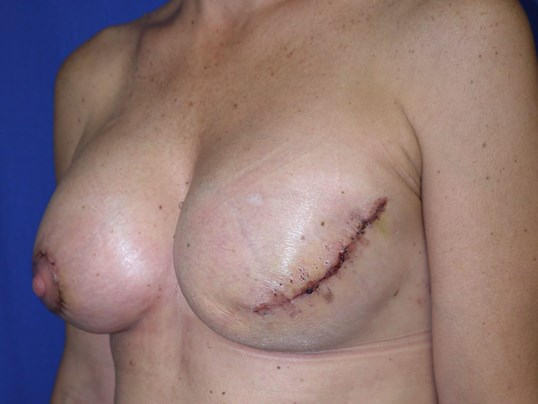 Scottsdale breast recon After