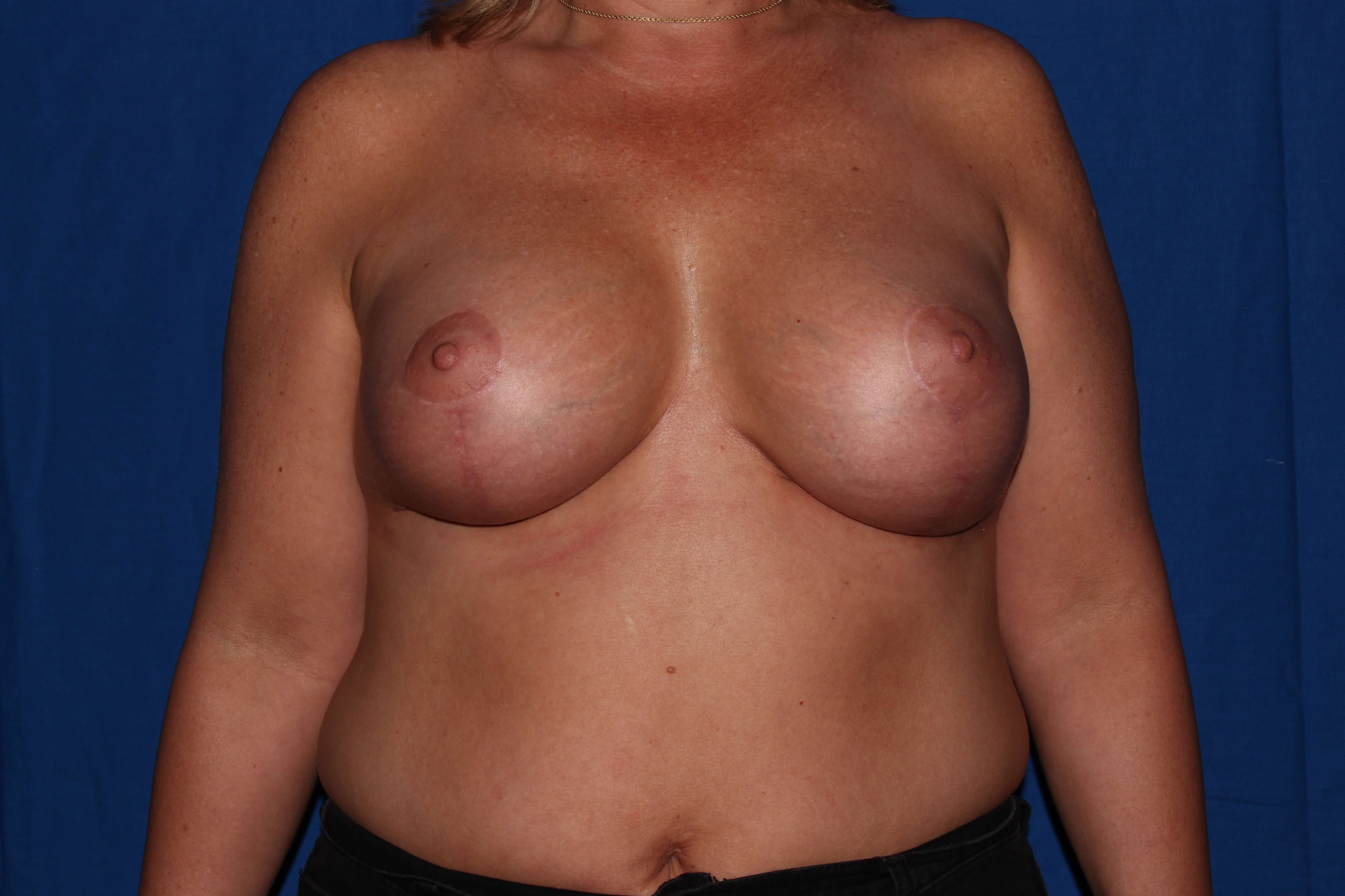 Prescott, Az Breast Revision After