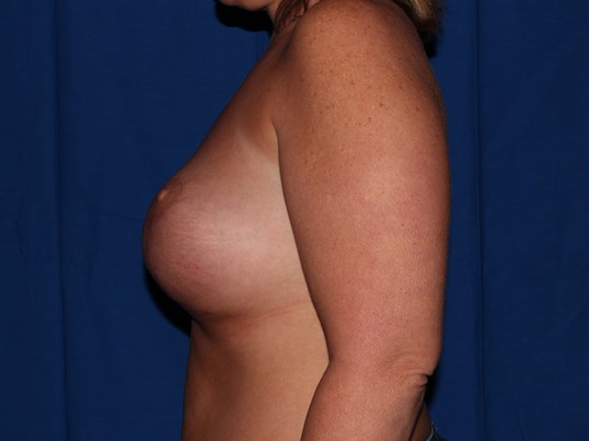 Prescott Az Breast Revision Before