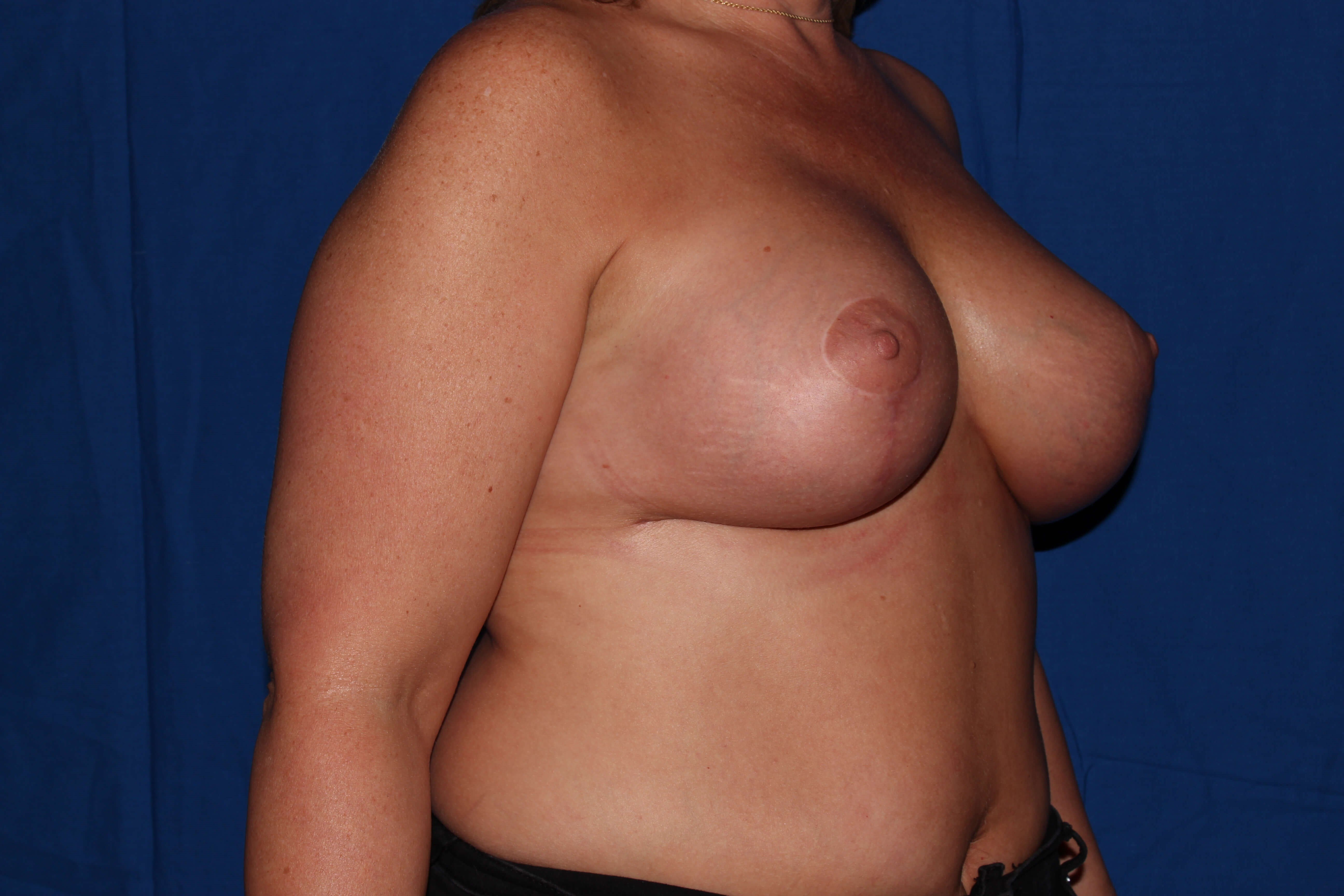Scottsdale Breast Revision After